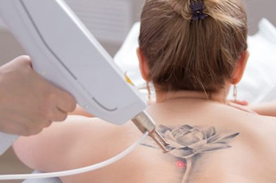 Laser Tattoo Removal | Sparrow Insurance